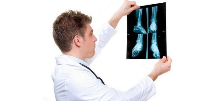 Медикаментозное лечение бурсита большого пальца стопы