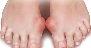Лечение косточек на ногах аспирином и йодом