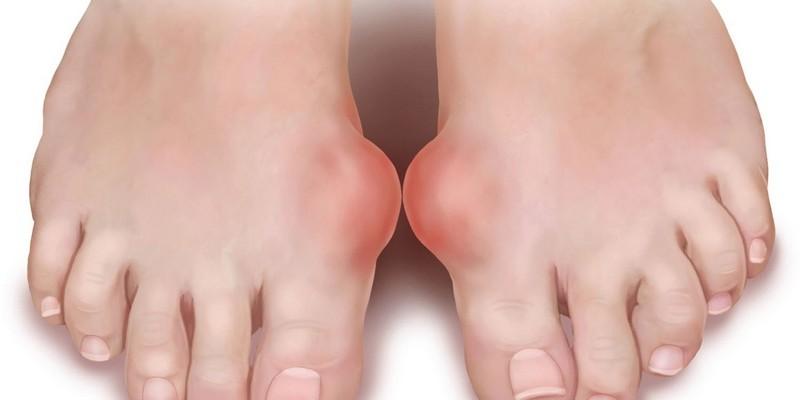 Косточки на ногах: лечение аспирином и йодом