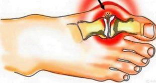 Что такое бурсит большого пальца стопы?