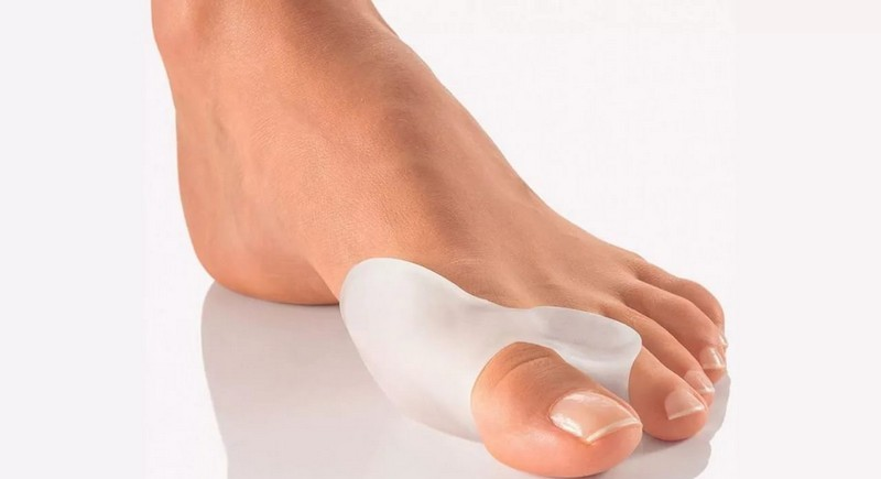 Профилактика шишек на ногах
