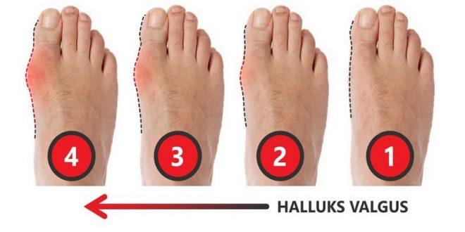Что такое hallux valgus и как его лечить?