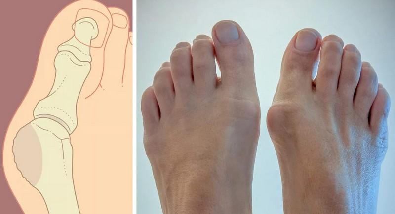 как питание сказывается на здоровье ног