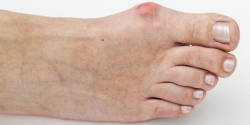 Опухла косточка возле большого пальца на ноге
