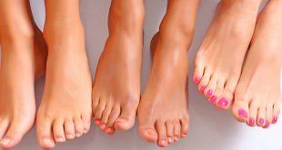 Лазерное удаление косточки на ногах