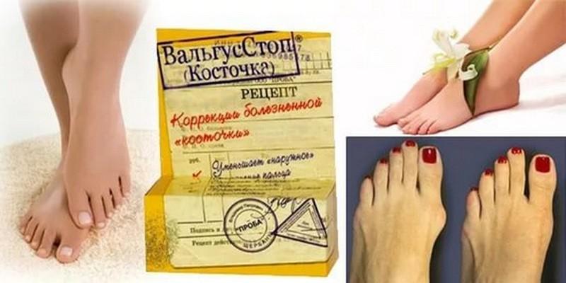Антикостин (Валгус Про) от косточек на ногах