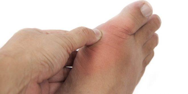Воспаление шишки на ноге у большого пальца