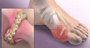 Почему воспаляется сустав большого пальца ноги