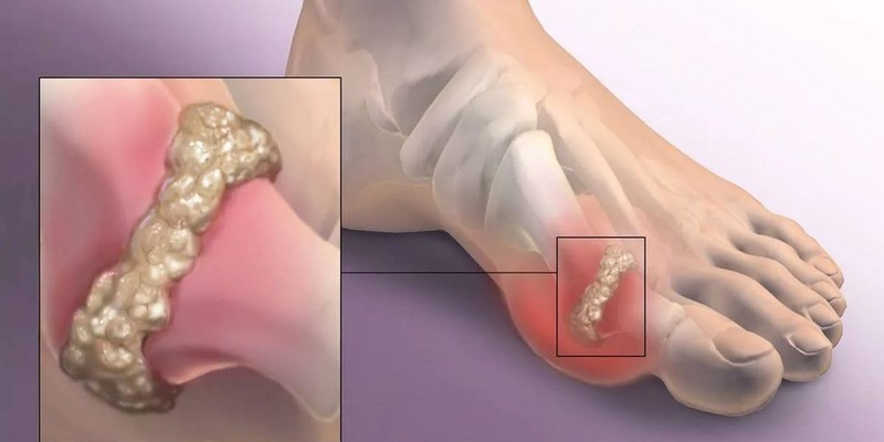 Если болит сустав большого пальца ноги при переломе позвоночника болит колено